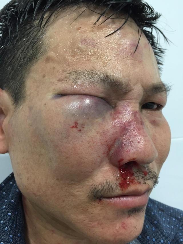 TPHCM: Bảo vệ bệnh viện đánh nhau với tài xế xe cấp cứu, 6 người bị thương - 5