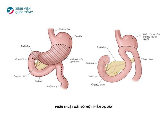 Điều trị ung thư dạ dày bằng phương pháp phẫu trị tiêu chuẩn Mỹ - 1