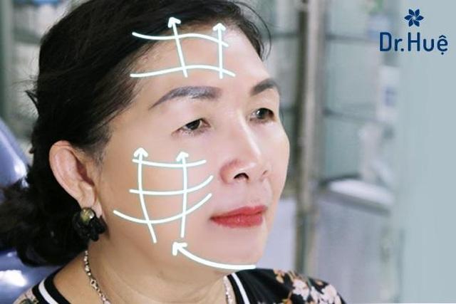 Hội thảo chuyển giao công nghệ thẩm mỹ chỉ sinh học tại Dr. Huệ Clinic  Spa - 3