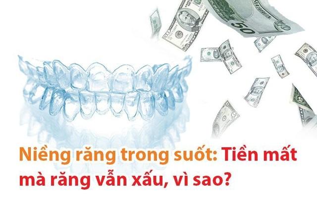 Niềng răng trong suốt: Tiền mất mà răng vẫn xấu, vì sao? - 1
