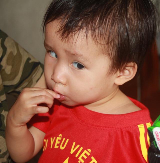 Tuổi thơ không lành lặn của 2 bé miền quê nghèo Hà tĩnh, nguy cơ mù vĩnh viễn - 5