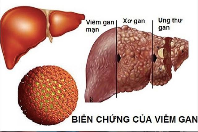 Viêm gan B lây lan nhanh hơn HIV gấp 100 lần, dùng chung bát đũa có lây? - 1
