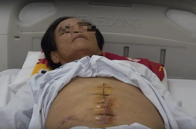 Bệnh nhân bị tái viêm ruột thừa do bác sĩ tuyến trước... mổ sót  - 1