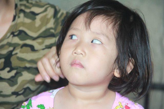 Tuổi thơ không lành lặn của 2 bé miền quê nghèo Hà tĩnh, nguy cơ mù vĩnh viễn - 4