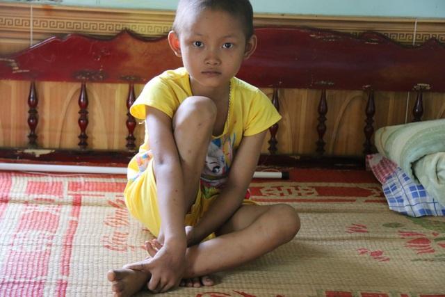 Khâm phục nghị lực phi thường của bé gái 10 tuổi  bị cắt một phần lá gan vì ung thư - 3