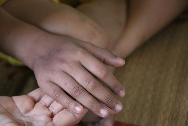 Khâm phục nghị lực phi thường của bé gái 10 tuổi  bị cắt một phần lá gan vì ung thư - 5