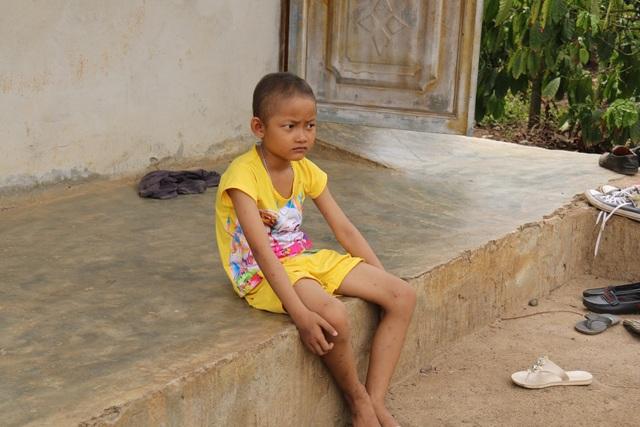 Khâm phục nghị lực phi thường của bé gái 10 tuổi  bị cắt một phần lá gan vì ung thư - 6