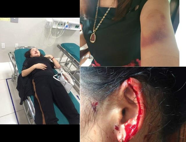 Vụ nữ giám đốc tố liên tục bị truy sát: Công an thu giữ 4 viên đạn - 1