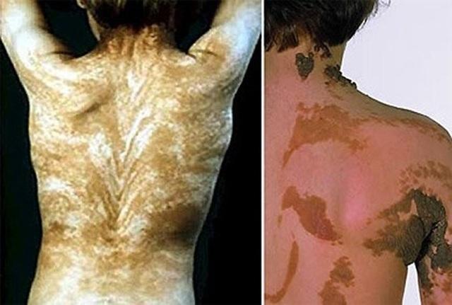 Top 10 căn bệnh kỳ lạ và đáng sợ nhất trên thế giới, y học chưa có lời giải - 8