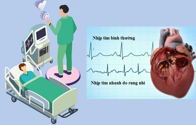Triệu chứng tim đập nhanh là bệnh gì và cách giảm nhịp tim - 3