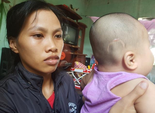 Xót xa cảnh bé trai 10 tháng tuổi đau đớn chống chọi với bệnh não úng thuỷ - 2