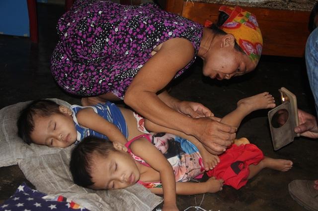 Gia đình nghèo kiết bất lực nhìn con gái 3 tuổi không có hậu môn chết mòn! - 5