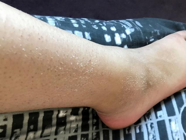 Cô gái mắc bệnh cực hiếm dị ứng... nước: Chỉ đổ mồ hôi cũng gây đau đớn - 3