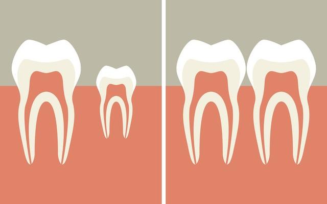 Công nghệ khiến răng tự mọc lại sau khi rụng: Sẽ không còn ai phải trồng răng! - 3