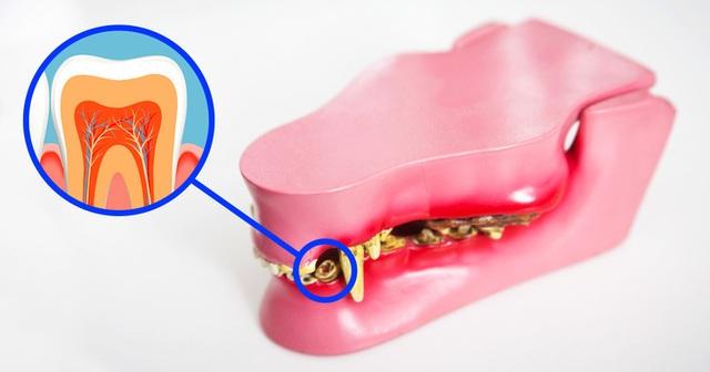 Công nghệ khiến răng tự mọc lại sau khi rụng: Sẽ không còn ai phải trồng răng! - 4