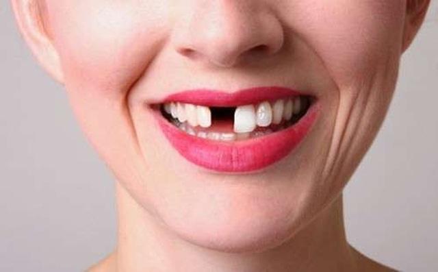 Công nghệ khiến răng tự mọc lại sau khi rụng: Sẽ không còn ai phải trồng răng! - 1