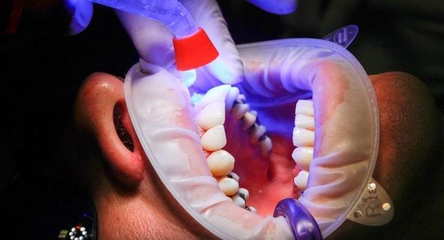 Có nên súc miệng sau khi đánh răng? - 1