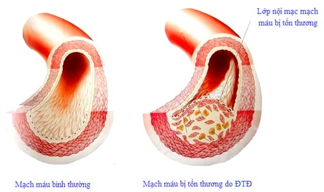 Tại sao người bị tăng huyết áp thường mắc cả đái tháo đường? - 1