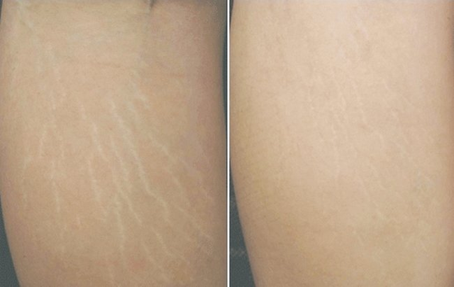 Cách cải thiện rạn da sau sinh lâu năm hiệu quả nhất năm 2019 - 1