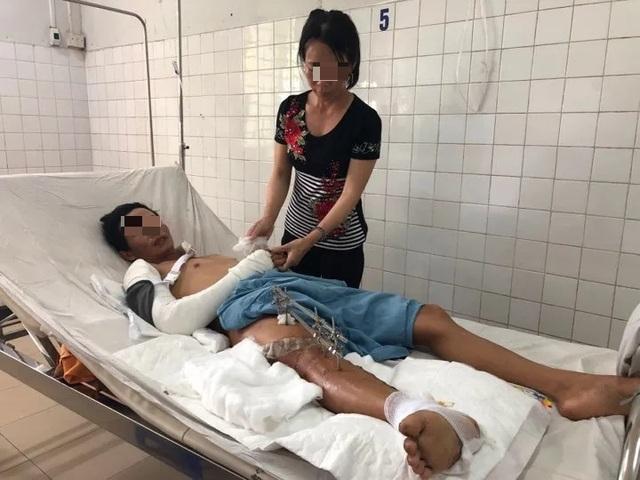 Nối thành công đùi phải bị đứt rời do tai nạn lao động cho một bệnh nhân - 2