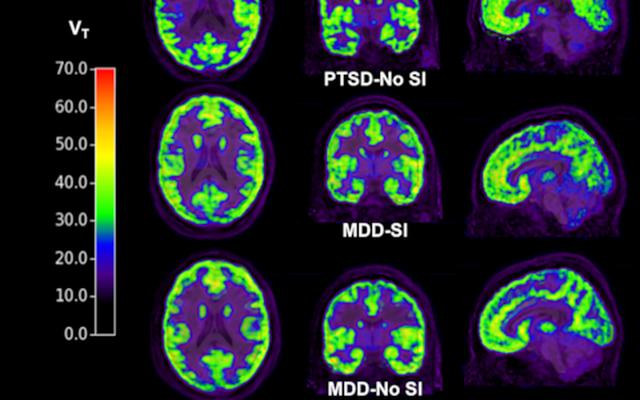 Quét não có thể phát hiện được ý định tự tử - 1