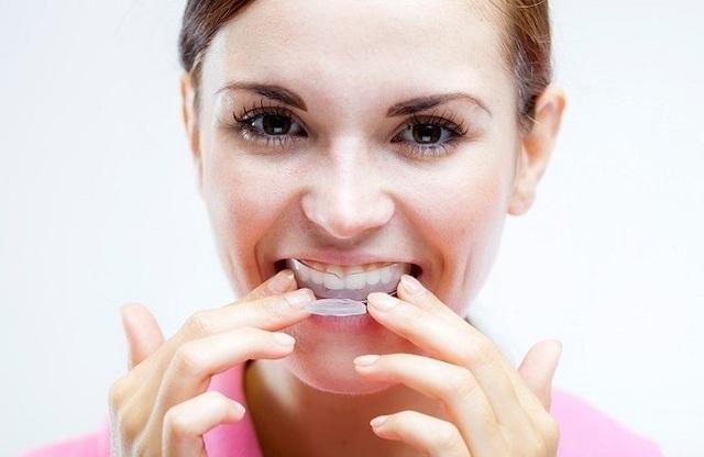 Những thói quen gây hại cho răng - 5