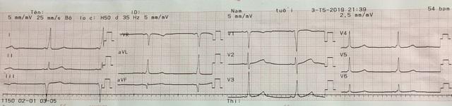 Bé gái có nhịp tim 200 lần mỗi phút vì hội chứng hiếm gặp - 1