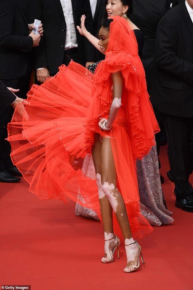 Winnie Harlow gặp sự cố trên thảm đỏ Cannes vì váy quá ngắn - 1