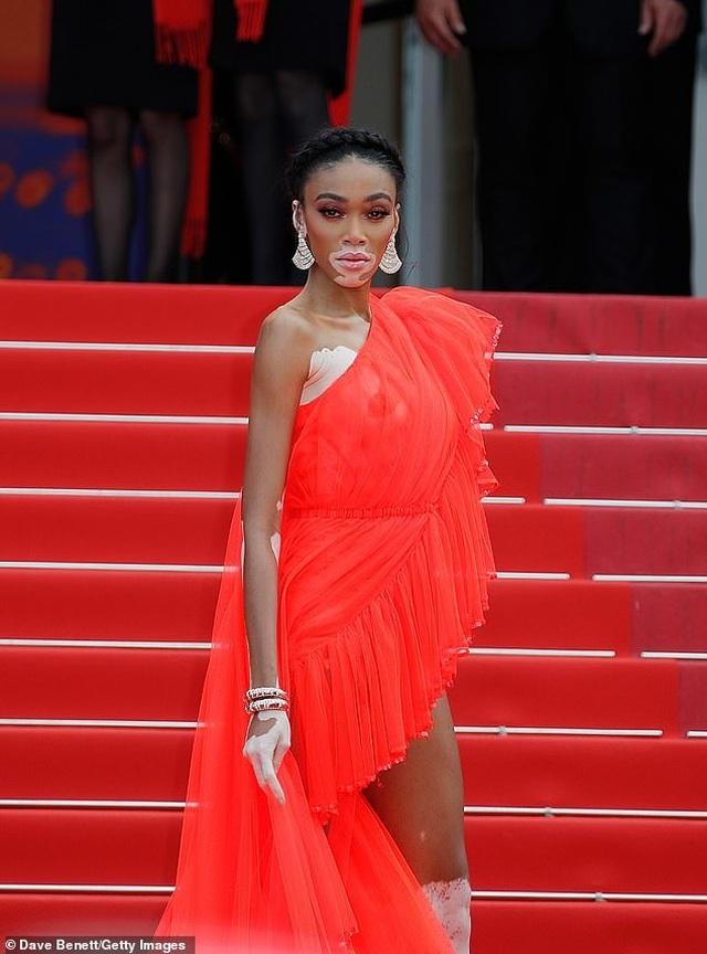 Winnie Harlow gặp sự cố trên thảm đỏ Cannes vì váy quá ngắn - 10