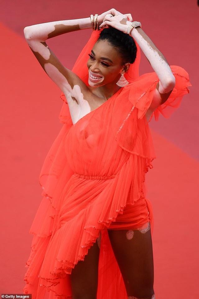 Winnie Harlow gặp sự cố trên thảm đỏ Cannes vì váy quá ngắn - 9