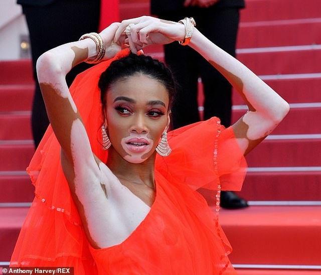 Winnie Harlow gặp sự cố trên thảm đỏ Cannes vì váy quá ngắn - 3
