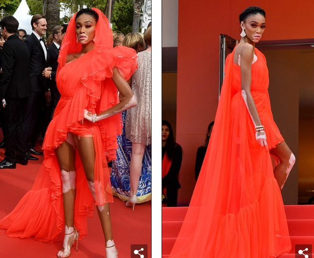 Winnie Harlow gặp sự cố trên thảm đỏ Cannes vì váy quá ngắn - 5