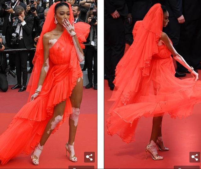 Winnie Harlow gặp sự cố trên thảm đỏ Cannes vì váy quá ngắn - 7