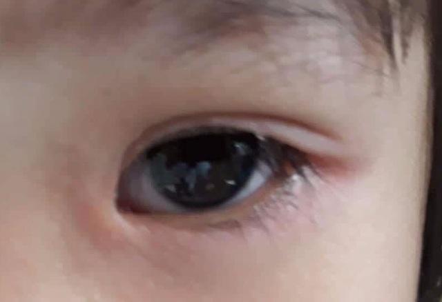 """Rận ở """"vùng kín"""" đi lạc lên mí mắt bệnh nhân - 1"""