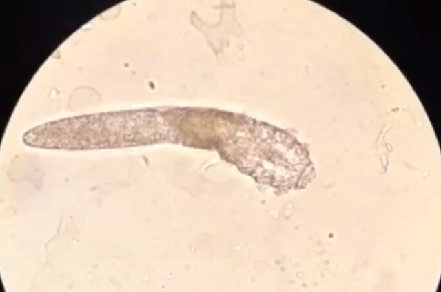 Ký sinh trùng đào hang khiến da mặt như bị mụn trứng cá - 2