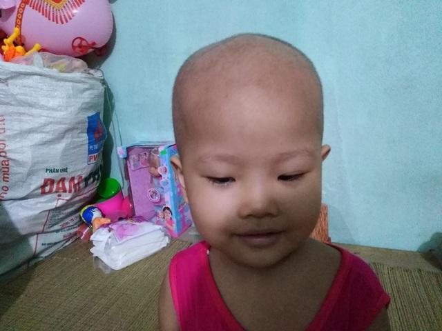 Xót xa bé gái 3 tuổi đã phải chống chọi bệnh ung thư máu - 4