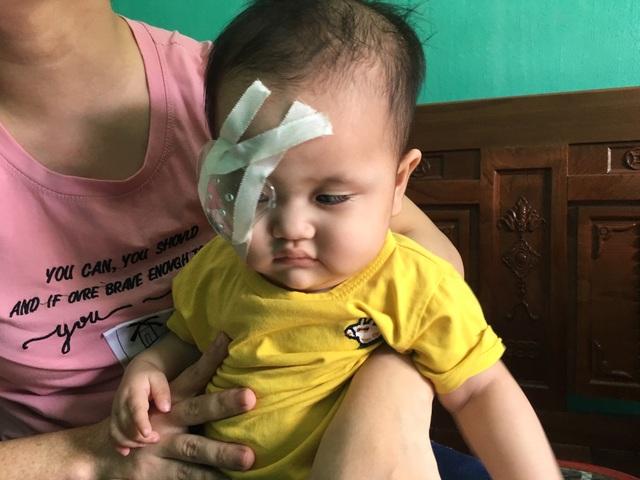 Bạn đọc Dân trí giúp đỡ cô bé 1 tuổi hơn 107 triệu đồng sang Singgapore chữa mắt - 2