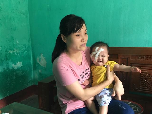 Bạn đọc Dân trí giúp đỡ cô bé 1 tuổi hơn 107 triệu đồng sang Singgapore chữa mắt - 3