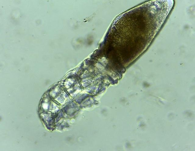 Phát hiện loài ve ký sinh siêu nhỏ trên mặt người - 1