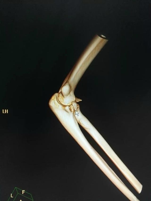 Gãy xương cánh tay, trật khớp khuỷu tay vì bế... bạn gái - 2