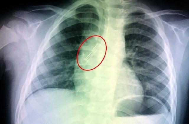 Mở quả trứng đồ chơi, bé trai bị lò xo bắn vào phổi - 1