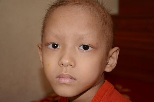 Bạn đọc Dân trí giúp đỡ cậu bé 9 tuổi có số phận mong manh được đến viện điều trị - 1