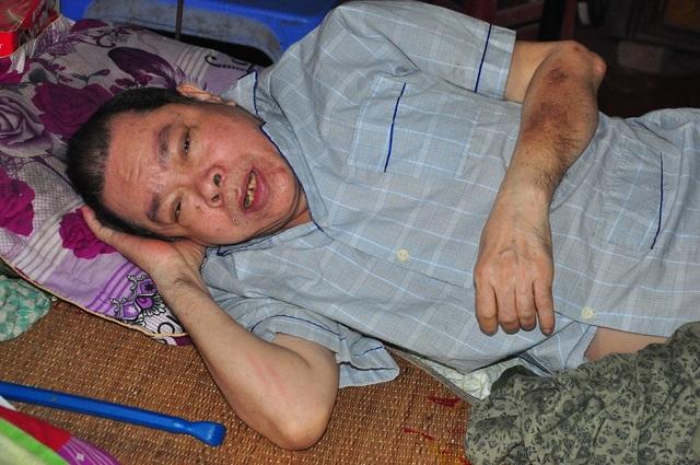 Lay lắt cảnh 2 ông bà cùng nằm liệt giường, sống trong đói khổ - 3