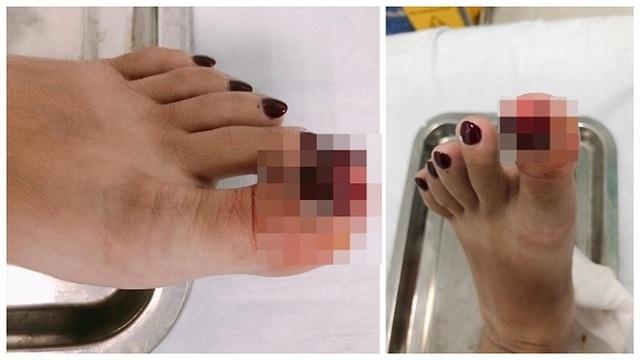 MC Hoàng Linh bị tai nạn lật ngón chân, phải nhập viện - 2