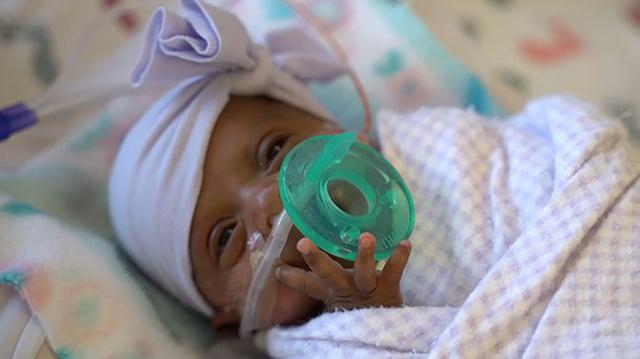 Em bé nhỏ nhất thế giới sống sót kì diệu dù có kích thước chỉ bằng một… quả táo - 1
