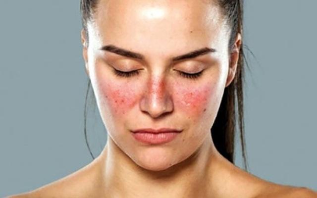 10 triệu chứng tê tay báo hiệu bệnh nguy hiểm - 10