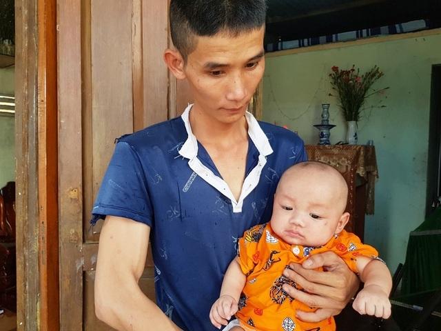 Xót xa 2 bé trai sinh đôi hơn 5 tháng tuổi bị đủ thứ bệnh hành hạ - 2