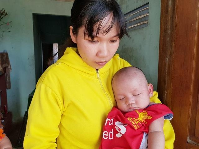 Xót xa 2 bé trai sinh đôi hơn 5 tháng tuổi bị đủ thứ bệnh hành hạ - 3