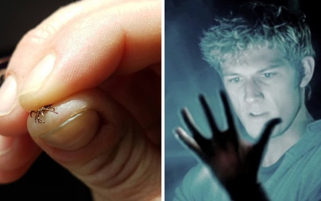 10 triệu chứng tê tay báo hiệu bệnh nguy hiểm - 3