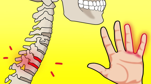 10 triệu chứng tê tay báo hiệu bệnh nguy hiểm - 9